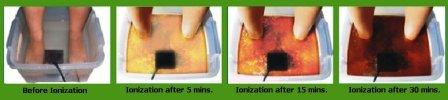 Detox Foot Spa, Detox Foot Bath, Ion Detox Foot Spa,